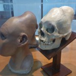 Crâne inca, la déformation est imposée aux personnes de hauts rangs sociaux